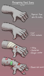 Recognising Hand Scars Poster