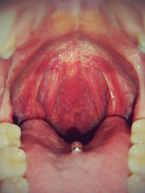 Vore Mouth